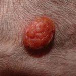Cocker spaniel skin warts