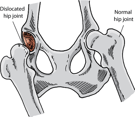 A normal and a dislocated hip joint of a dog